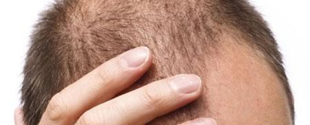 tratamiento anticaida del cabello